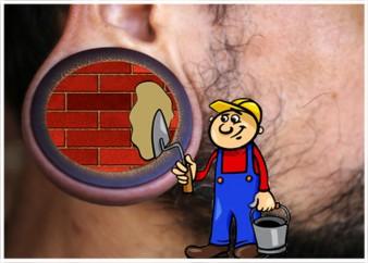 הרחבות באוזניים – תיקון תנוכי אוזניים